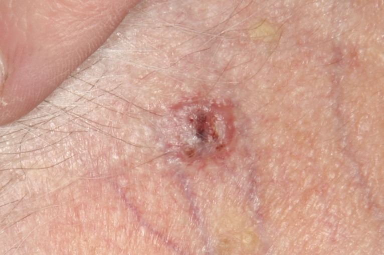 skin cancer as the most commonly diagnosed cancer in the united states Here's a look at the cancers that killed the most people in the us in recent years   the dread and fear that can come with a cancer diagnosis have their roots   most common cancer in women in the united states, after skin.