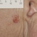 basal-cell-carcinoma-03