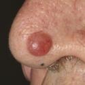 basal-cell-carcinoma-11