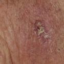 basal-cell-carcinoma-18