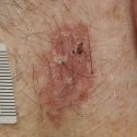 intraepithelial-carcinoma-iec-04