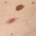 melanocytic-nevus-5