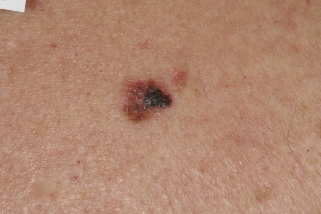 nodular melanoma pictures early