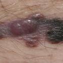 malignant-melanoma-03