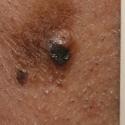 malignant-melanoma-05