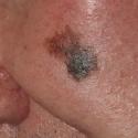 malignant-melanoma-06