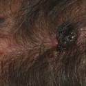 malignant-melanoma-17
