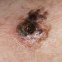 malignant-melanoma-19