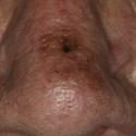 malignant-melanoma-21
