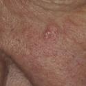 sebaceous-hyperplasia-08