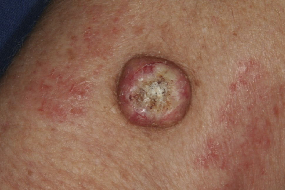 Picture of Squamous Cell Carcinoma - WebMD