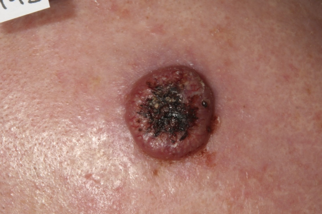 Skin Cancer: Basal and Squamous Cell Overview