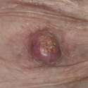 squamous-cell-carcinoma-06
