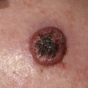 squamous-cell-carcinoma-07