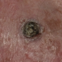squamous-cell-carcinoma-14