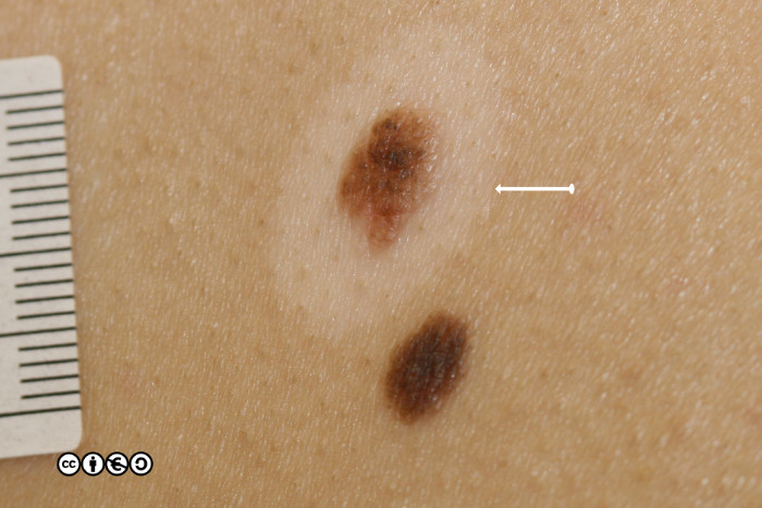 Mimics of skin cancer (i) - Skin Cancer 909
