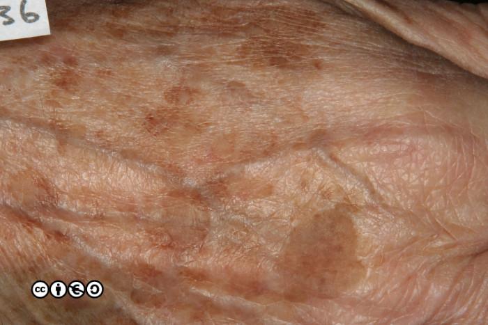 Mimics Of Skin Cancer I Skin Cancer 909