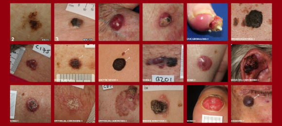 an introduction to the issue of skin cancer Our intention is to provide a general introduction to skin cancer, with links to  specific information available around the net please send us your comments,.