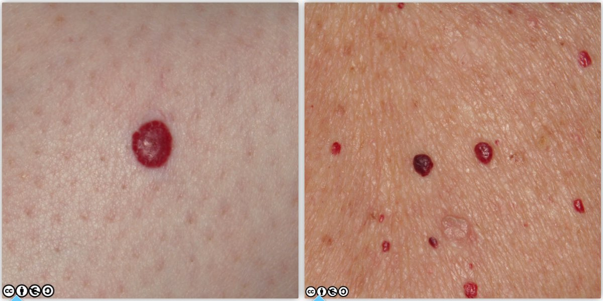 Can Lesions On Organs Be Healed Naturally