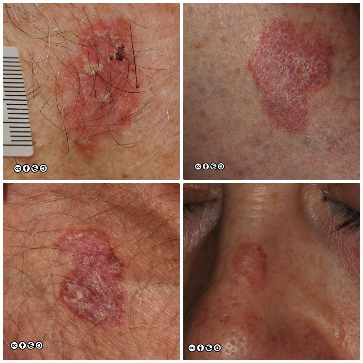 Premalignant lesions - Skin Cancer 909