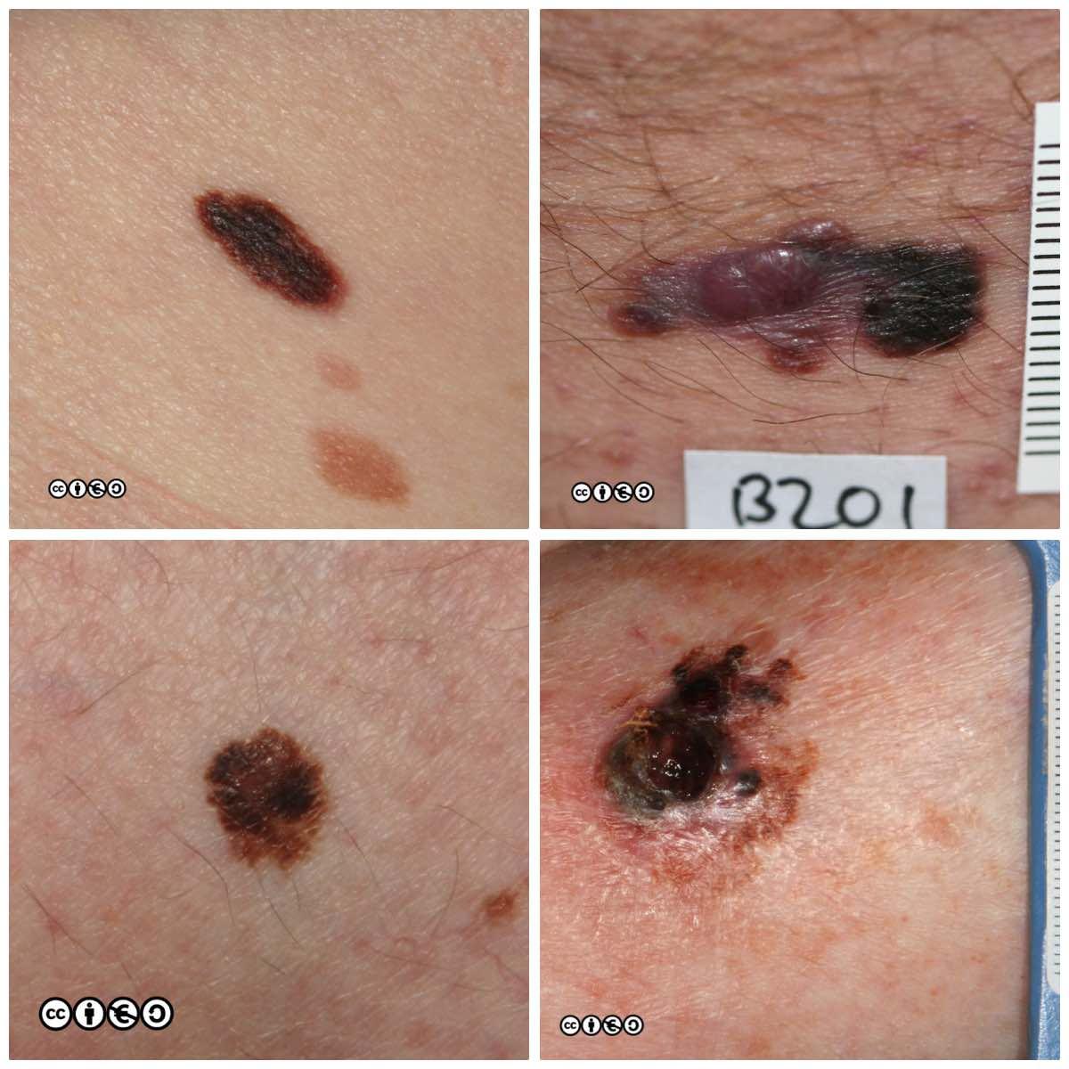Melanoma Skin Cancer 909