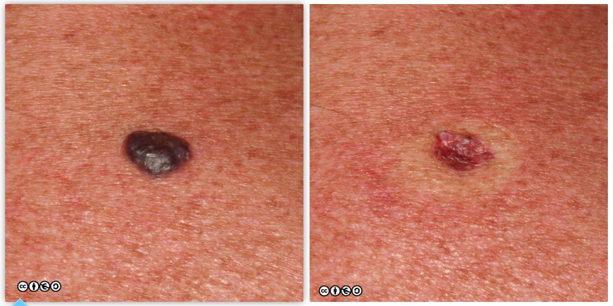 Mimics Of Skin Cancer Ii Skin Cancer 909