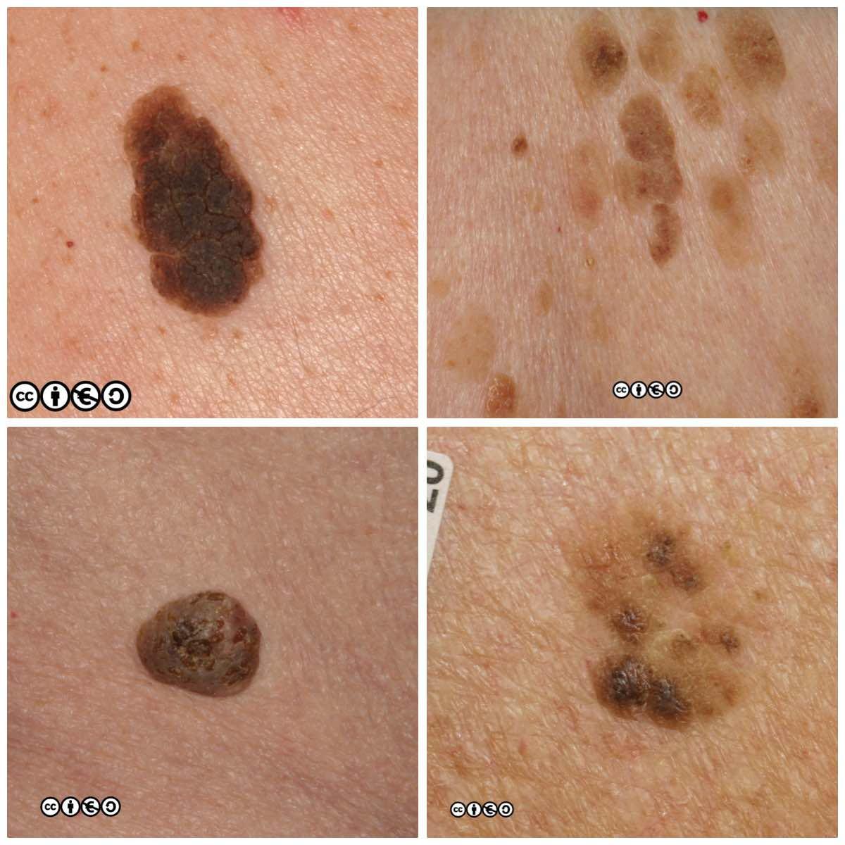 Basal cell papilloma - Basal cell papilloma