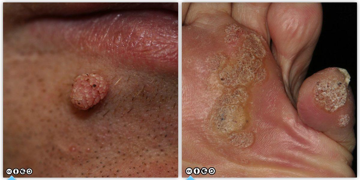 wart on leg skin cancer)